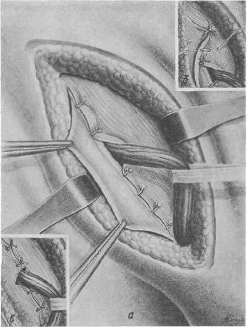 разрыв брюшины грыжа