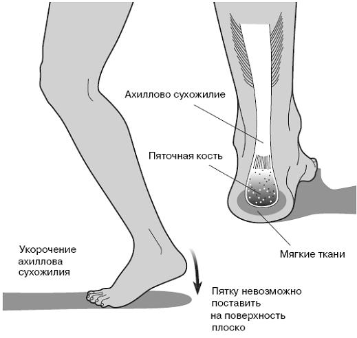 Тело в пяточном суставе укол жидкости в суставах