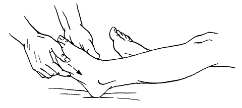 Рис 10 щипцеобразное поглаживание